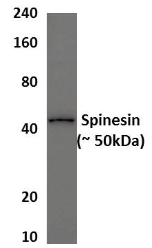 Western blot - Anti-TMPRSS5 antibody [MM0558-5B52] (ab89740)