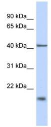 Western blot - Anti-TBC1D21 antibody (ab89799)