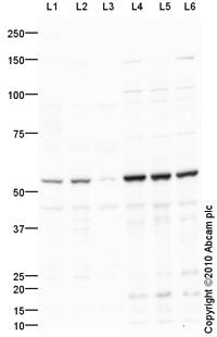 Western blot - Anti-MMP8 antibody (ab89834)