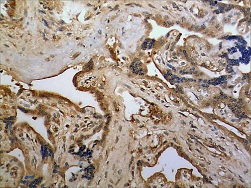Immunohistochemistry (Formalin/PFA-fixed paraffin-embedded sections) - Anti-UNC5C antibody [MM0595-7F31] (ab89938)