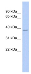 Western blot - Anti-SOX7 antibody (ab89954)