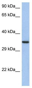 Western blot - Anti-HORMAD2 antibody (ab89961)