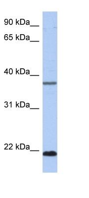 Western blot - Anti-HDDC3 antibody (ab89964)