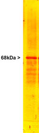 Western blot - Anti-68kDa Neurofilament antibody - Neuronal Marker (ab9035)