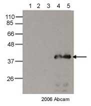 Western blot - Anti-6X His tag® antibody - ChIP Grade (ab9108)