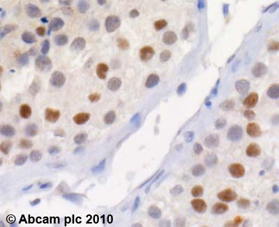 Immunohistochemistry (Formalin/PFA-fixed paraffin-embedded sections) - Anti-KAT13C / NCOA2 antibody - ChIP Grade (ab9261)