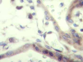 Immunohistochemistry (Formalin/PFA-fixed paraffin-embedded sections) - Anti-IGF2 antibody (ab9574)