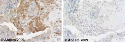 Immunohistochemistry (Formalin/PFA-fixed paraffin-embedded sections) - Anti-PUMA antibody (ab9643)