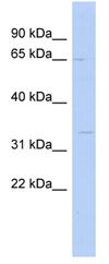 Western blot - Anti-SC5DL antibody (ab90008)