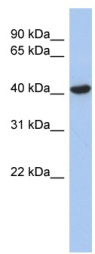 Western blot - Anti-ZFYVE1 antibody (ab90029)
