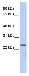 Western blot - Anti-ULBP1 antibody (ab90039)
