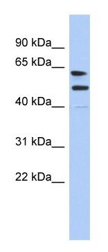 Western blot - Anti-CXorf67 antibody (ab90049)