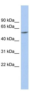 Western blot - Anti-PRAME antibody (ab90052)