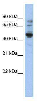 Western blot - Anti-PRAME antibody (ab90053)
