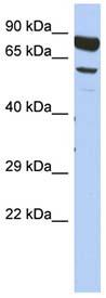 Western blot - Anti-DPY19L4 antibody (ab90060)