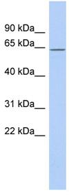 Western blot - Anti-RNPC3 antibody (ab90090)