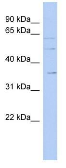 Western blot - Anti-SLC22A17 antibody (ab90099)