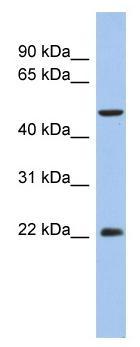 Western blot - Anti-ANKH antibody (ab90104)