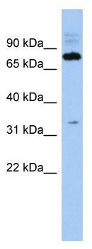 Western blot - Anti-FAM161B antibody (ab90125)