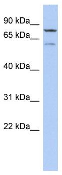 Western blot - Anti-OSGIN1 antibody (ab90128)