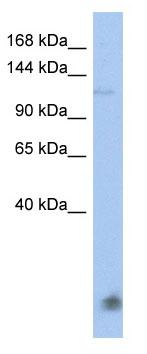 Western blot - Anti-HECT E3 ubiquitin ligase antibody (ab90146)