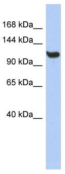 Western blot - Anti-TMEM63C antibody (ab90266)