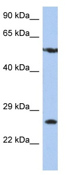 Western blot - Anti-ZNF10 antibody (ab90308)