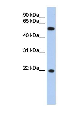 Western blot - Anti-gamma C Crystallin antibody (ab90333)