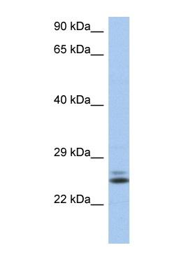 Western blot - Anti-Rab15 antibody (ab90359)