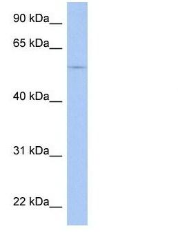 Western blot - Anti-TRIM58 antibody (ab90362)