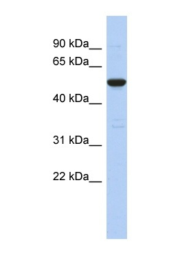 Western blot - Anti-C9orf75 antibody (ab90415)