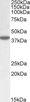 Western blot - Anti-ERLIN1 antibody (ab90427)