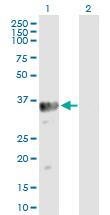 Western blot - Anti-Estrogen Sulfotransferase antibody (ab90441)