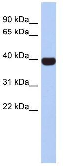Western blot - Anti-NEUROD4 antibody (ab90484)