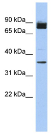 Western blot - Anti-FAM190A antibody (ab90508)