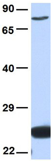 Western blot - Anti-Nuclear Factor Erythroid 2 Related Factor 1 antibody (ab90524)
