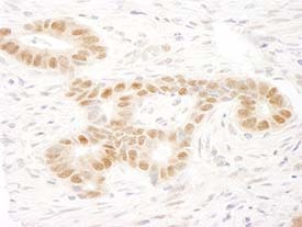Immunohistochemistry (Formalin/PFA-fixed paraffin-embedded sections) - Anti-MAML2 antibody (ab90592)