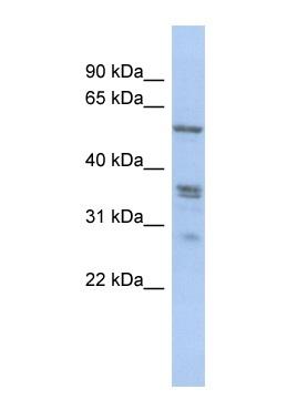 Western blot - Anti-SLC38A2 antibody (ab90677)
