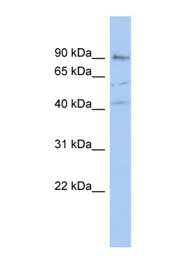 Western blot - Anti-PARP12 antibody (ab90678)