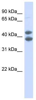 Western blot - Anti-SOX4 antibody (ab90696)