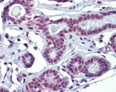 Immunohistochemistry (Formalin/PFA-fixed paraffin-embedded sections) - Anti-SOX4 antibody (ab90696)