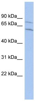 Western blot - Anti-CNOT2 antibody (ab90703)