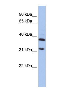 Western blot - Anti-ASPA antibody (ab90725)