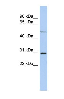 Western blot - Anti-POU3F3 antibody (ab90727)