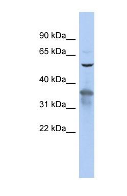 Western blot - Anti-RAB3IP antibody (ab90732)