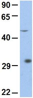 Western blot - Anti-LBX1 antibody (ab90839)