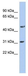 Western blot - Anti-DBT antibody (ab90869)