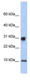 Western blot - RPS21 antibody (ab90874)