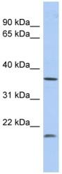 Western blot - Anti-MTHFD2L antibody (ab90887)