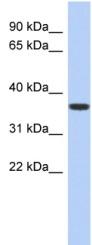 Western blot - Anti-MVK antibody (ab90888)